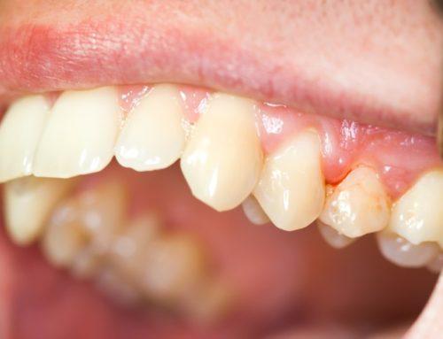 Oral Symptoms to Never Ignore
