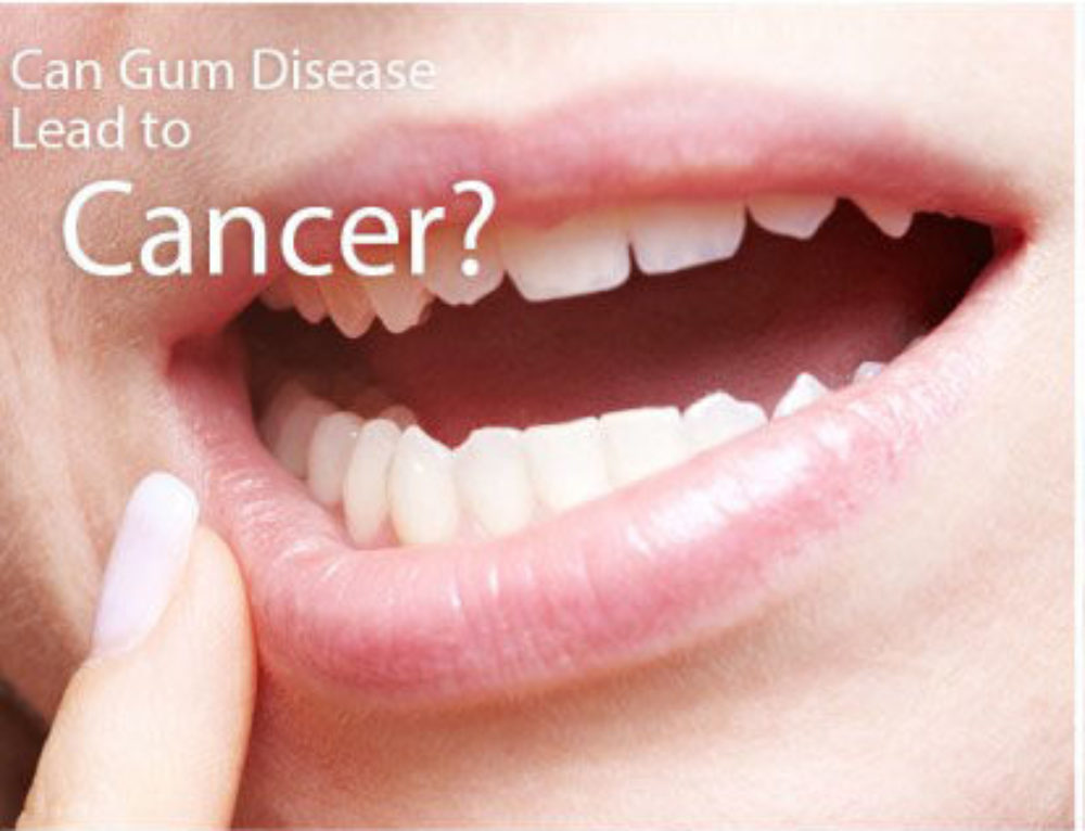 Gum Disease is Tied To This Particular Risk for Older Women!