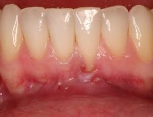 Are You Causing Your Own Gum Recession?
