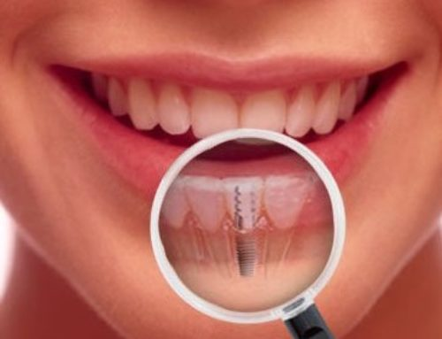 Top 5 Reasons For Dental Implants