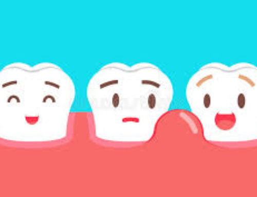 Swollen Gums:  Top 3 Causes